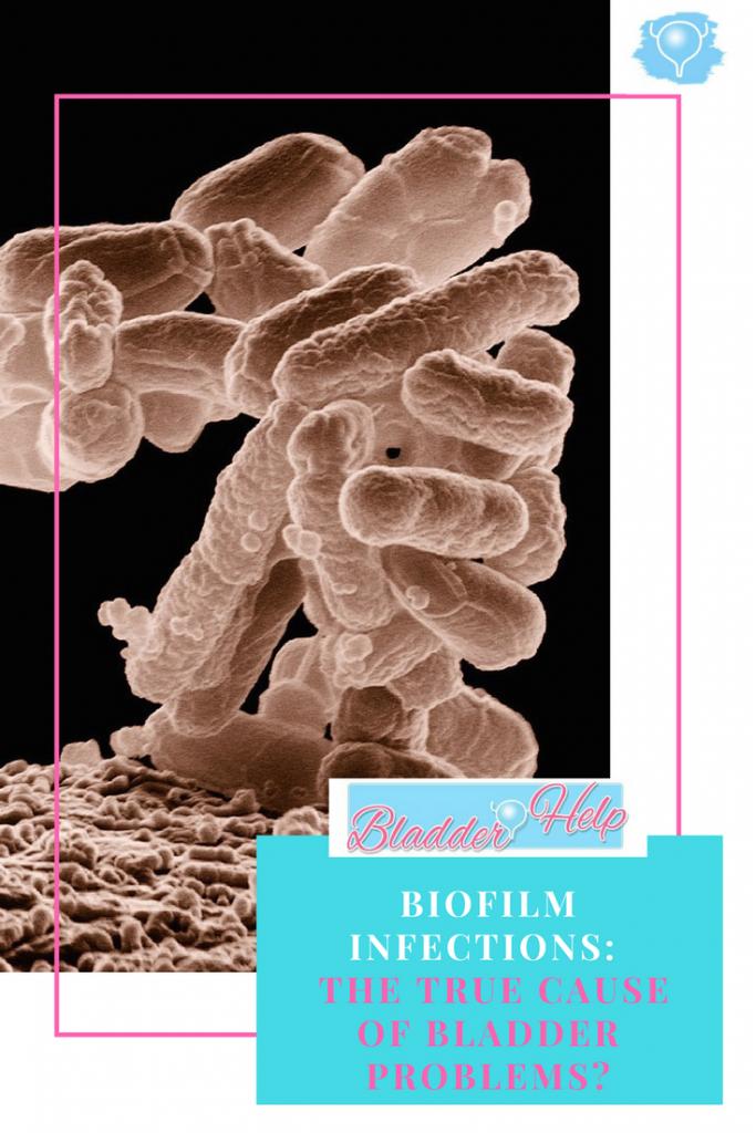 Biofilm infections: The True Cause of Bladder Problems | Bladder-Help.com