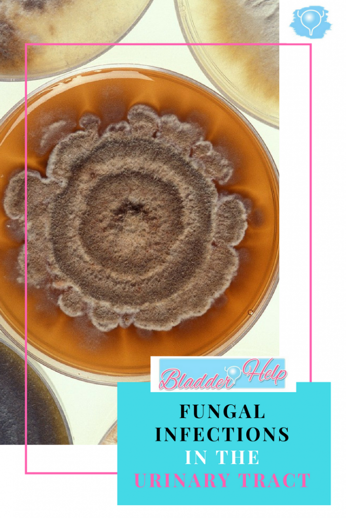 Fungal Infections in the Urinary Tract - Bladder Help